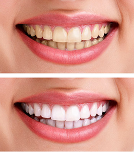 ABC-Dental-Teeth-Whitening